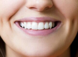 Czy biel zębów oznacza, że są zdrowe?